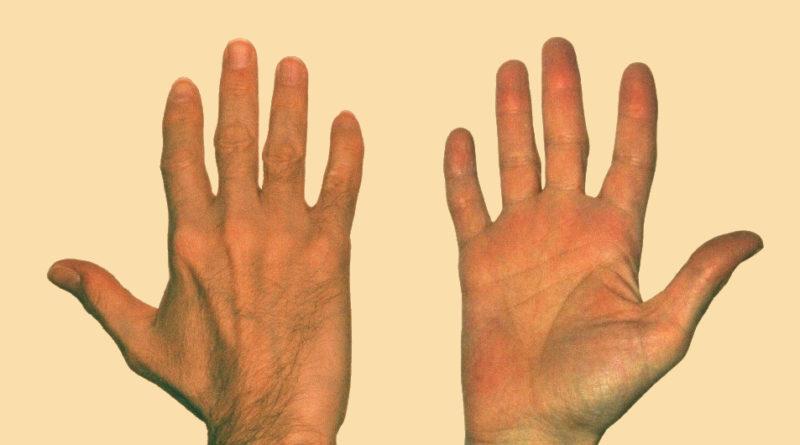 Mappa della mano