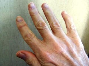 Antiche unghie datazione